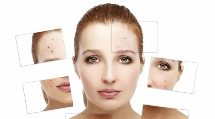 Signs you need to consult dermatologists